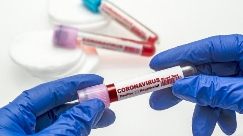 القصرين :اصابة نقابيين بفيروس كورونا