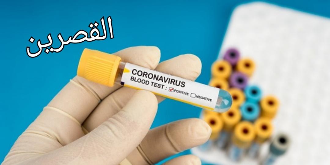 القصرين: تسجيل اصابتين بفيروس كورونا