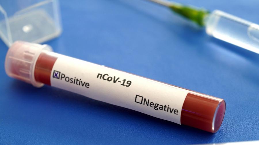 المندوبية الجهوية للتربية بالقصرين : 304 اصابة بفيروس كرونا و  حالة  وفاة وحيدة